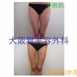 大阪雅美容外科のインスタ画像